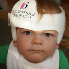 "Is the Head Round? Baby helmets may help ""Flat Head Syndrome"""