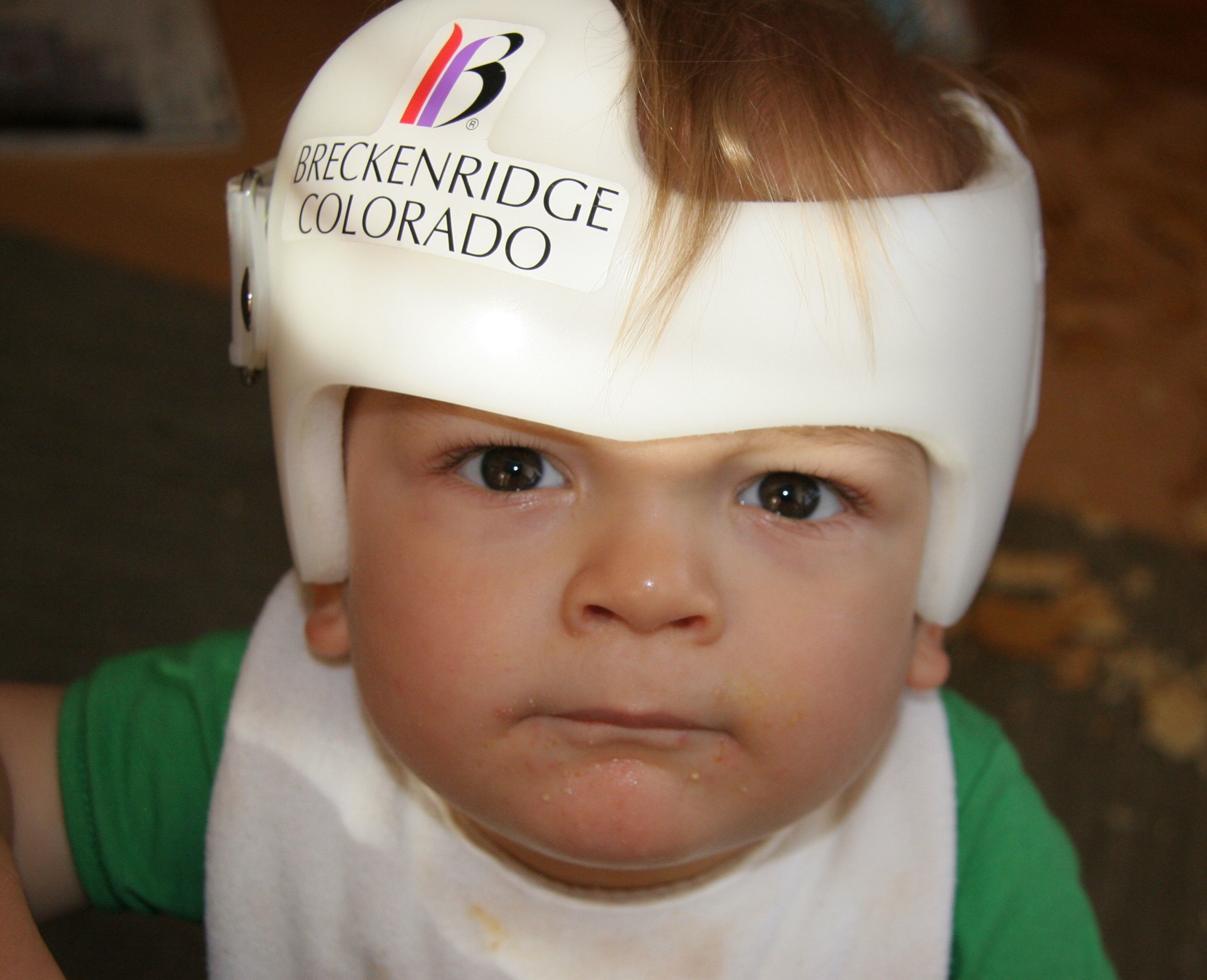 Is The Head Round Baby Helmets May Help Flat Head